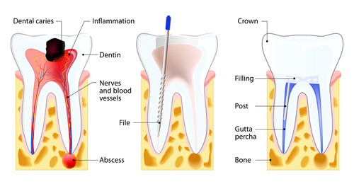 Root Canal Dentist Salt Lake City